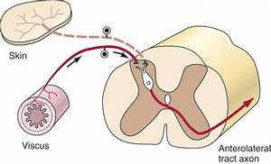 Medic Guide  What Is Referred Pain