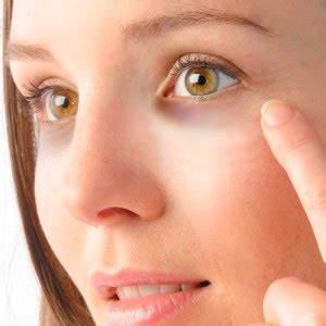 Как избавиться от морщин под глазами в 22 года