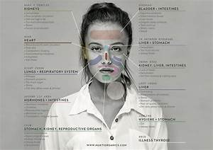 Face Mapping: The Location of The Acne Can Reveal Problem ...
