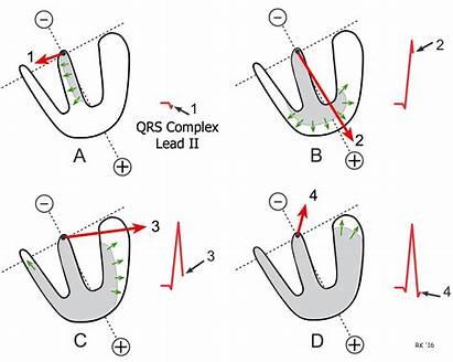 Ventricular Depolarization Electrical Axis Mean Vectors Sequence