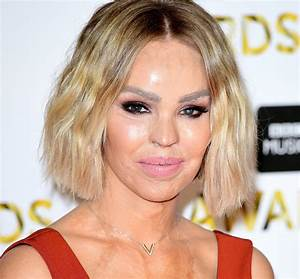 Katie Piper: 'For acid attack survivors, the aftermath is ...