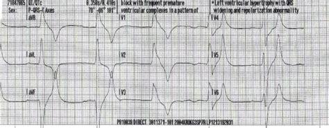sinus bradycardia   st degree heart block wide qrs