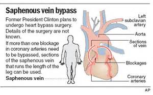 ... prime candidate for heart disease - Health - Heart health - NBC News Heart Bypass Surgery