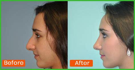 nose smaller naturally  makeup alqurumresortcom