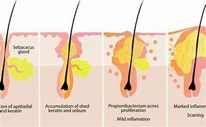 How To Get Rid Of Sebaceous Cyst