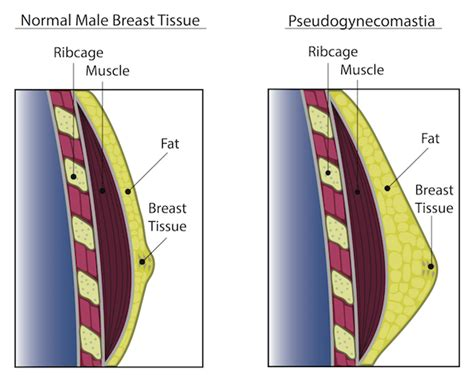 Gynecomastia - Male Breast Enlargement - Elite Men's Guide