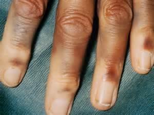 ps_141107_hemophilia_a_800x600.jpg Hemophilia A
