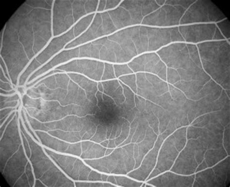 fundus fluorescein angiography ffa eye disease consultants