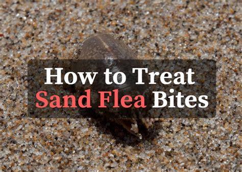 treat sand flea bites
