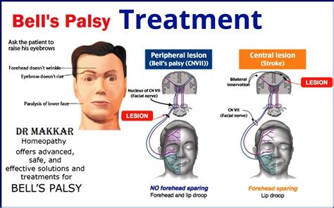 Bells palsy Homeopathic Treatment Idiopathic facial paralysis