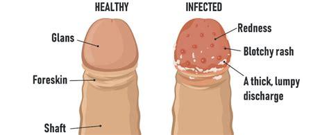 mooci balanitis roetungen pickel und juckreiz  der