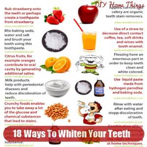 Home Ideas Teeth Whitening Image