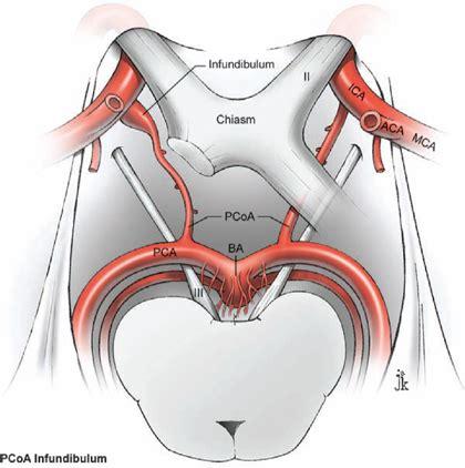gallery infundibulum posterior communicating artery
