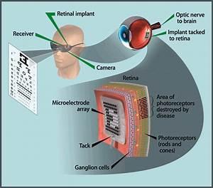 How The Artificial Retina Works