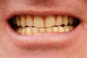 Higiene bucal informe21com for 12 los alimentos y bebidas que causan dientes amarillos