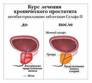 Курс лечения простатита лекарством афала