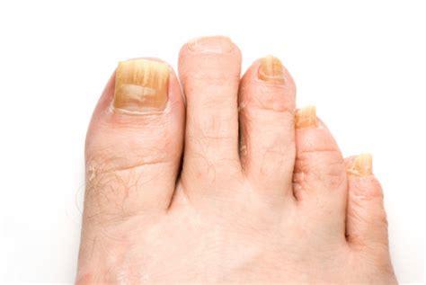 Tratament micoza unghiei