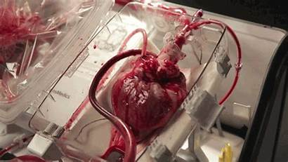 Heart Removed Dead Transplant Resuscitates Bodies Hearts