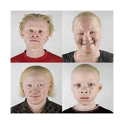Albino Why Racism Hair Albinism True God