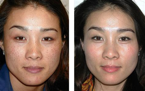 laser skin pigmentation removal treatment in melbourne dermacare cosmetic laser and skin