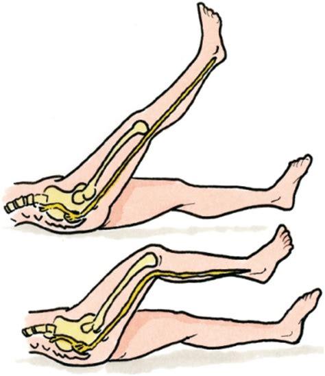 Oefeningen onderrug hernia