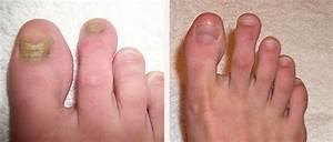 Лечение грибка ногтя запущенная форма отзывы прополисом