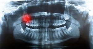 Symptome Dent De Sagesse : faut il toujours extraire une dent de sagesse ~ Maxctalentgroup.com Avis de Voitures