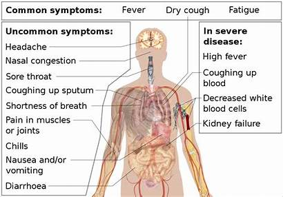 Svg Coronavirus Symptoms Disease Wikipedia Wiki History