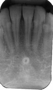 Lingual Foramen Cbct Cross