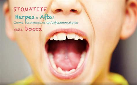 interno bocca stomatite aftosa o erpetica quali sono i sintomi e come