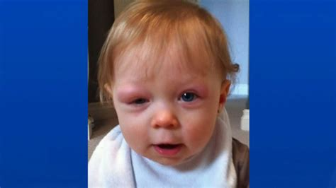 Alberta Mom Wants Law To Protect Allergic 4 Year Old