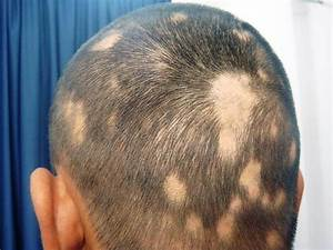 Spot Baldness Alopecia Things You Didn39t Know