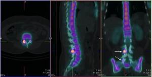 Spect  Ct Images  Axial  Sagittal  Coronal  Localizing