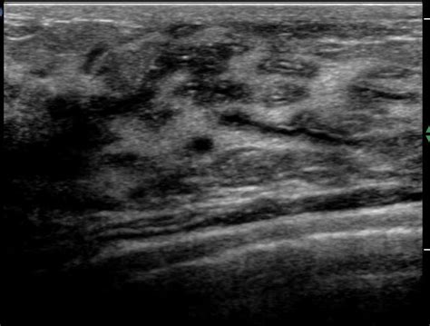 Breast Ultrasound Images Normal Breast Ultrasound How To