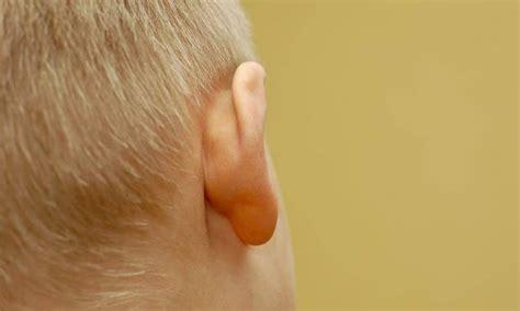 bump  ear painless lump painful soft lymph nodes