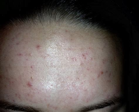 Forehead Acne 19 Girl General Acne Discussion Acneorg