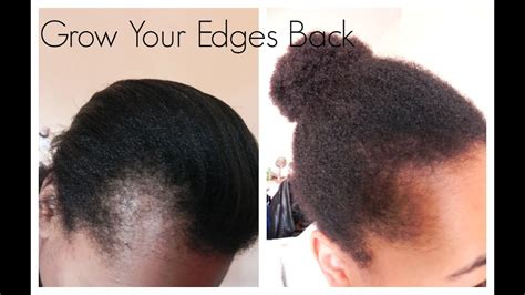 Get Those Edges Back | How I Grew Out My Edges And Bald