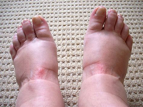 Swelling Feet  Causes, Treatment, Pain, During Pregnancy. Air Signs Of Stroke. Ipad Signs. Ignore Signs Of Stroke. Caution Sign Signs. Cramps Signs. Statistics India Signs. Chinese Medicine Signs Of Stroke. Long Signs Of Stroke