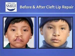 Free to Smile Foundation Guatemala 2010 Mission - YouTube