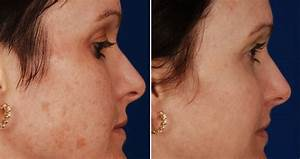 Cold laser treatment face