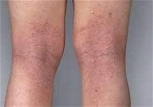 Dermatita, atopica : poze, imagini, diagrame, ilustratii