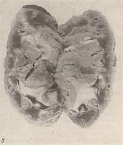 Стенгазета артериальная гипертония