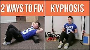 Two Way Fix : 2 ways to help fix stubborn kyphosis hunchback posture youtube ~ Orissabook.com Haus und Dekorationen