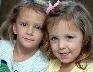 Turner Syndrome Symptoms  Causes  Diagnosis And Treatment