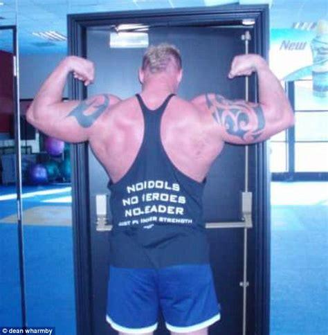 bodybuilder  liver cancer