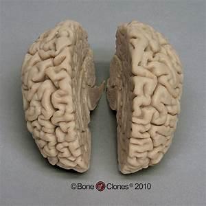Human Brain - Bone Clones, Inc. - Osteological Reproductions
