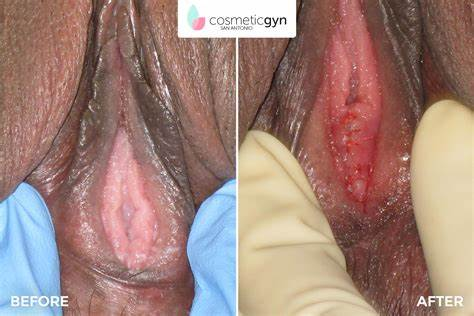 Hymen Time At The Vaginal Holes Firsttime
