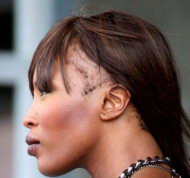naomi cbell tension alopecia what is tension