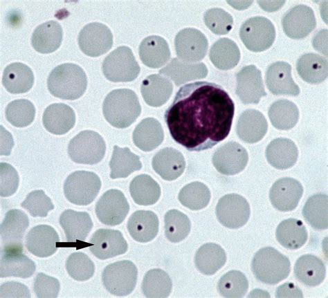 ehrlichia in dogs file anaplasma centrale jpg