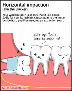 Wisdom teeth pe... Tooth Extraction Quotes